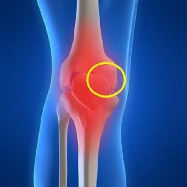 Arthritis: Physical Therapy May Help